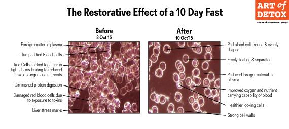 Parasite Free Detox