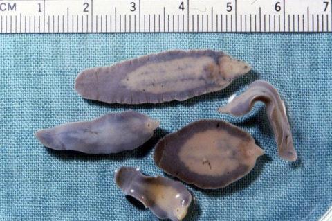 Fasciola hepatica – Liver fluke