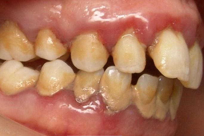 Dirty Teeths